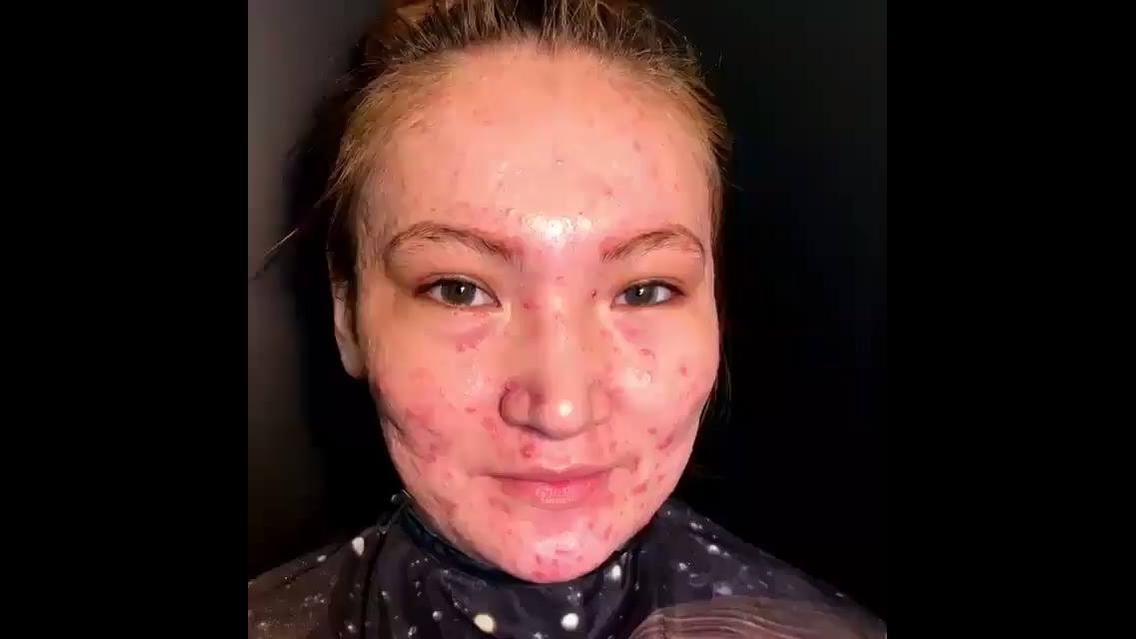 Transformação incrível em mulher com pele acnosa