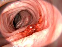 Immunotherapy For Advanced Colon Cancer-Know More
