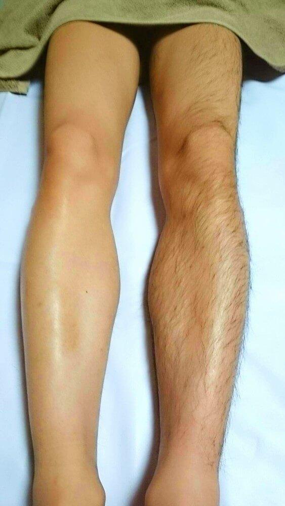 この写真は自分の脚の毛、左が剃った後、右が剃る前です。