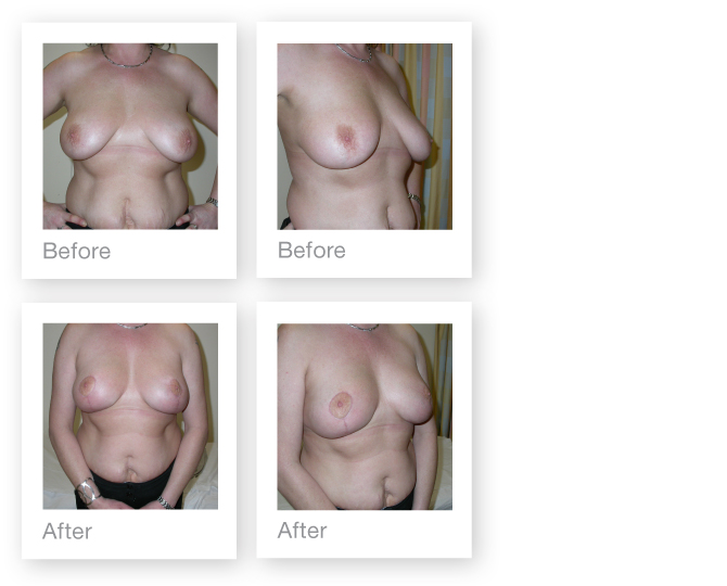 Breast Augmentation & Mastopexy by David Oliver, plastic surgeon before & after results 4
