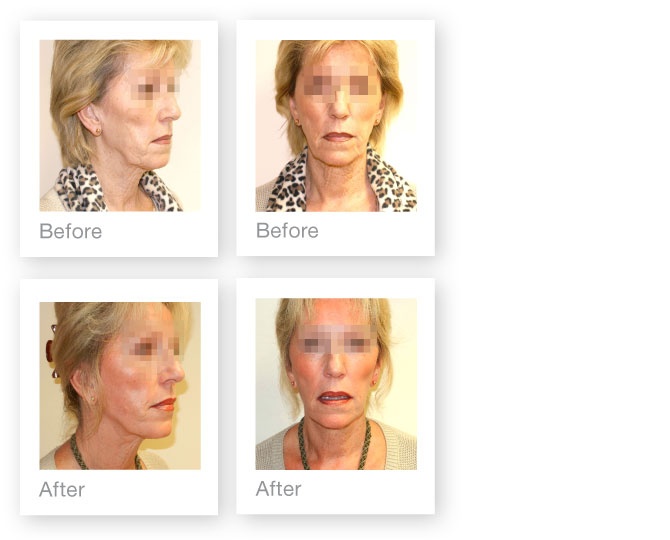 David Oliver Facelift Surgery October 2012 Before & After photo