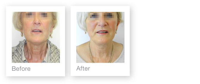 David Oliver Plastic Surgeon - Facelift before & after photos - September 2013