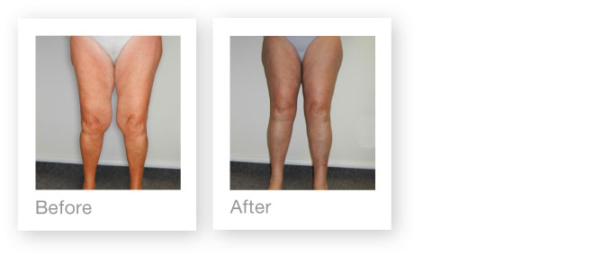 David Oliver Medial leg lift and liposuction before & after surgery peformed in Devon