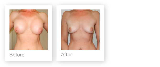 Before & After PIP breast implant removal by David Oliver Cosmetic Surgeon
