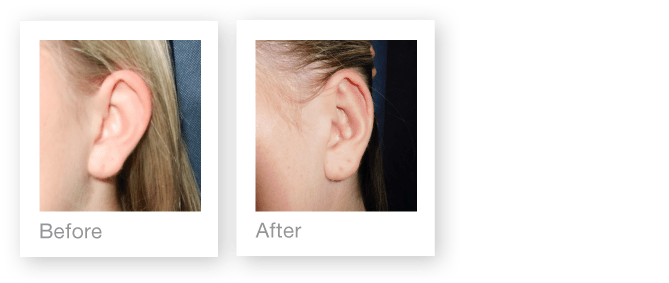 David Oliver Cosmetic Surgery Otoplasty ear surgery before & after