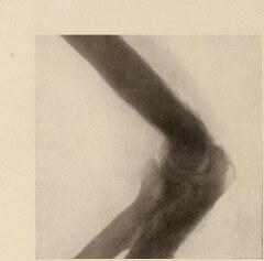 osteoarthritis photo - doctor sarno back pain relief w/ joe polish