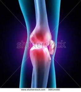 doctor sarno back pain relief w/ joe polish