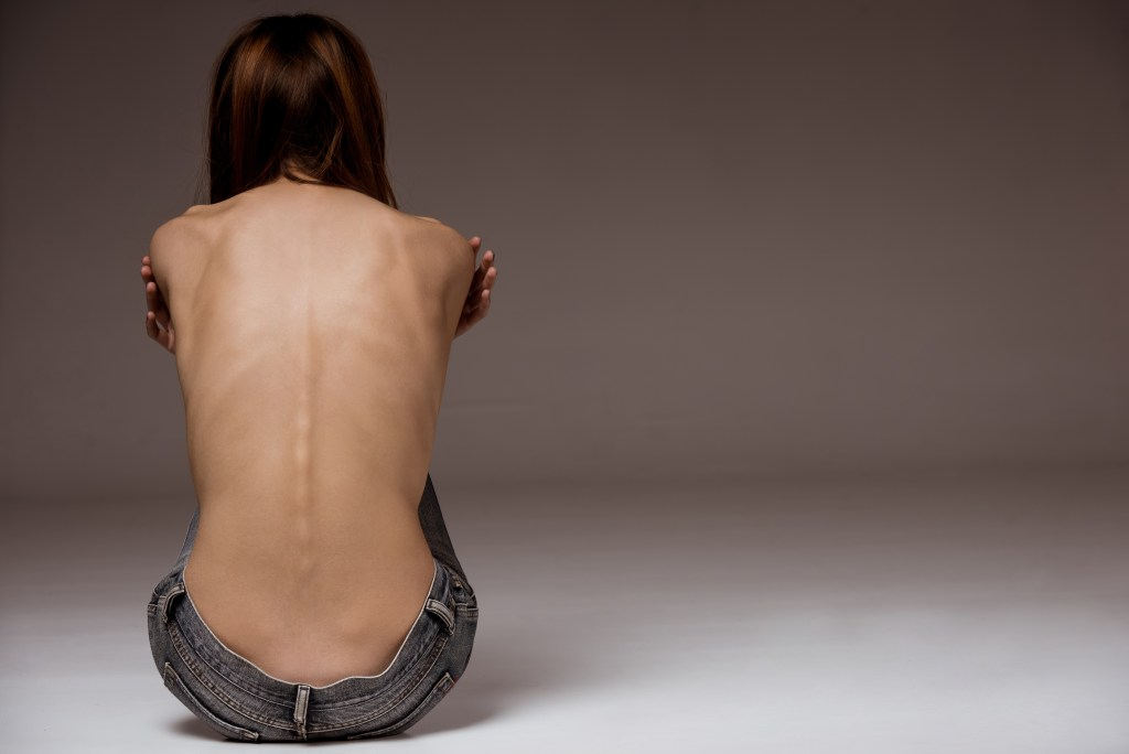 Emaciated girl with anorexia.