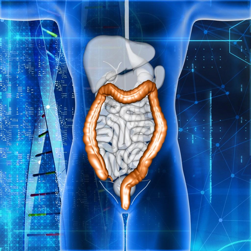 colon picture