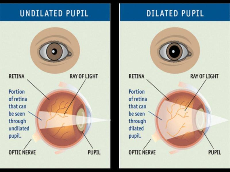 dilate eyes image