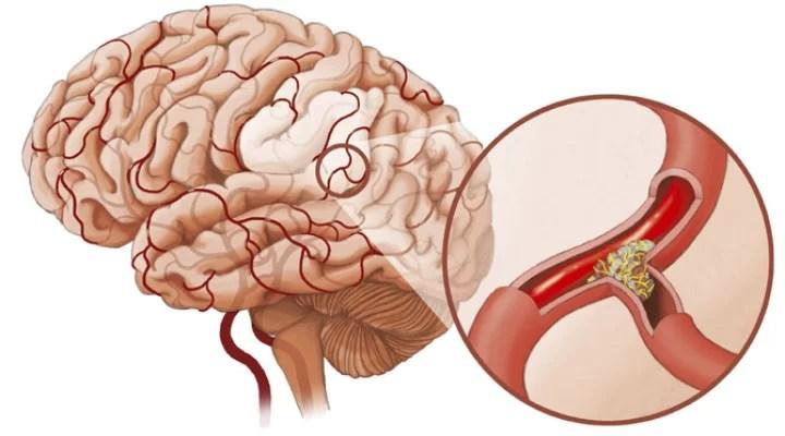 Препарат Циннаризин для нормализации кровообращения