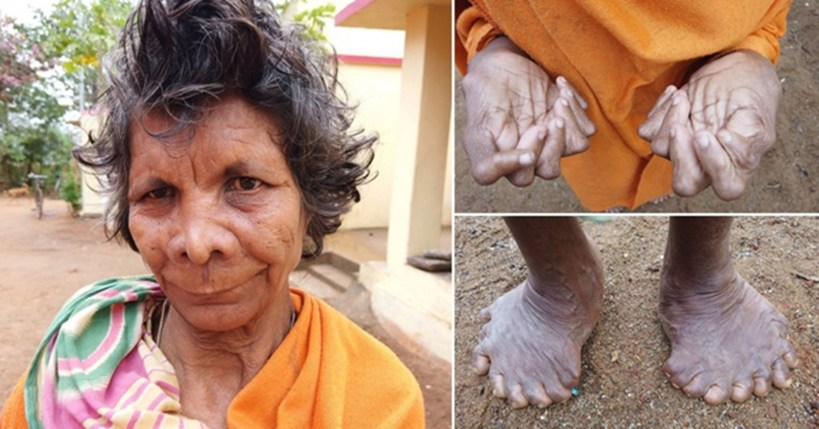 INDIAN WOMAN HAS 19 TOES AND 12 FINGERS