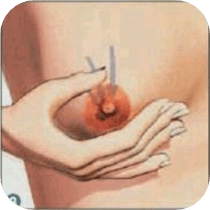 Firm Breast Massage to Loosen Muscles
