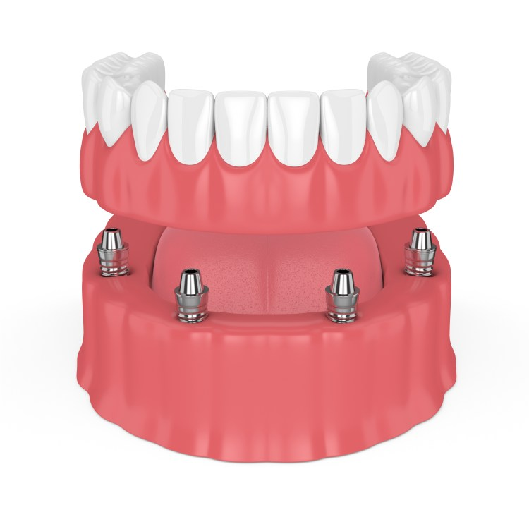All on 4 dental implant procedure allows us to replace all of your teeth with a fixed bridge on only four implants!