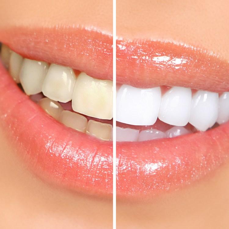 I wish my teeth were whiter!
