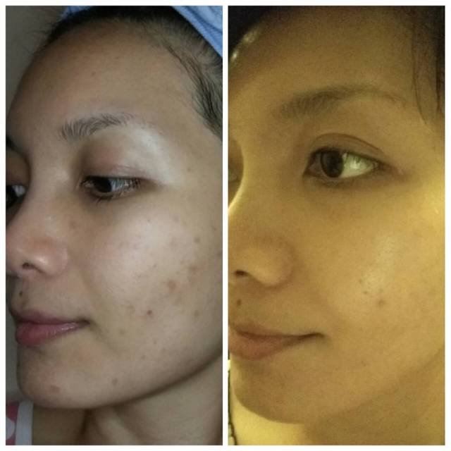 The Jesselton Girl Review: Synergie Skin Practitioner Priority-B Essential Niacinamide Serum