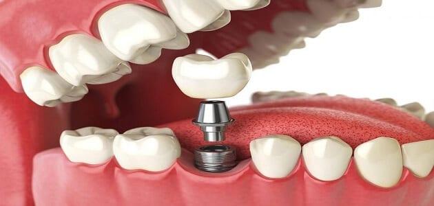 التركيبات الثابتة للأسنان
