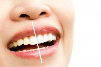 طريقة عملية تبييض الأسنان