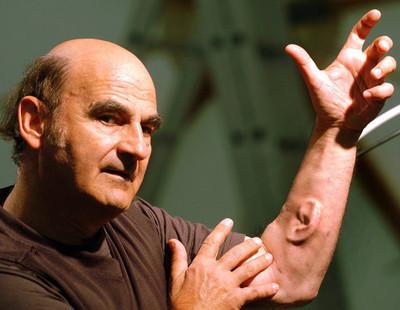 Image result for Stelarc 'Ear on Arm' (2006-2013)