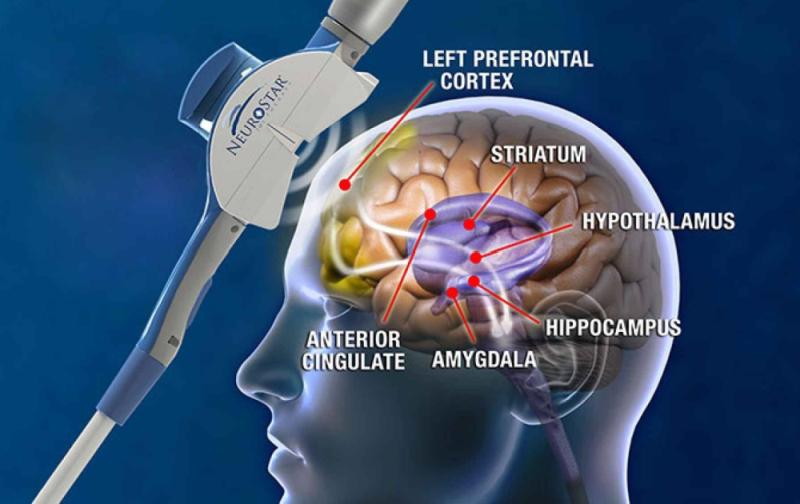 TMS Magnetic Brain Stimulation