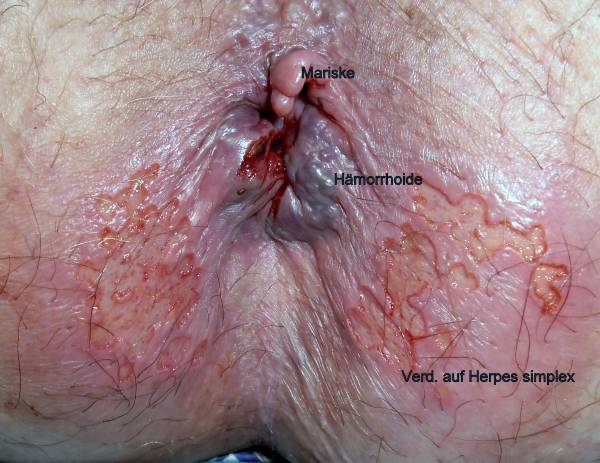 How Can You Tell The Difference Between Anal Herpes And Hemorrhoids? 1