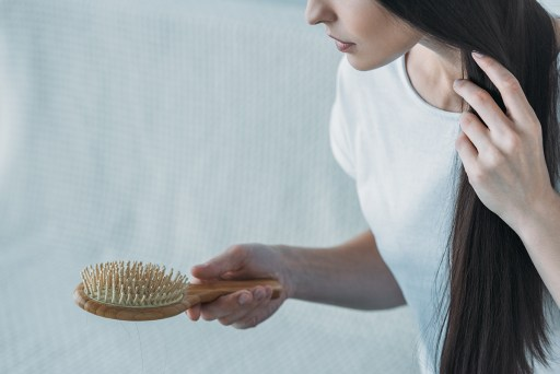 Hair Loss and Alopecia in Women