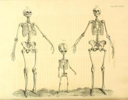 d'Arconville skeletons 1759