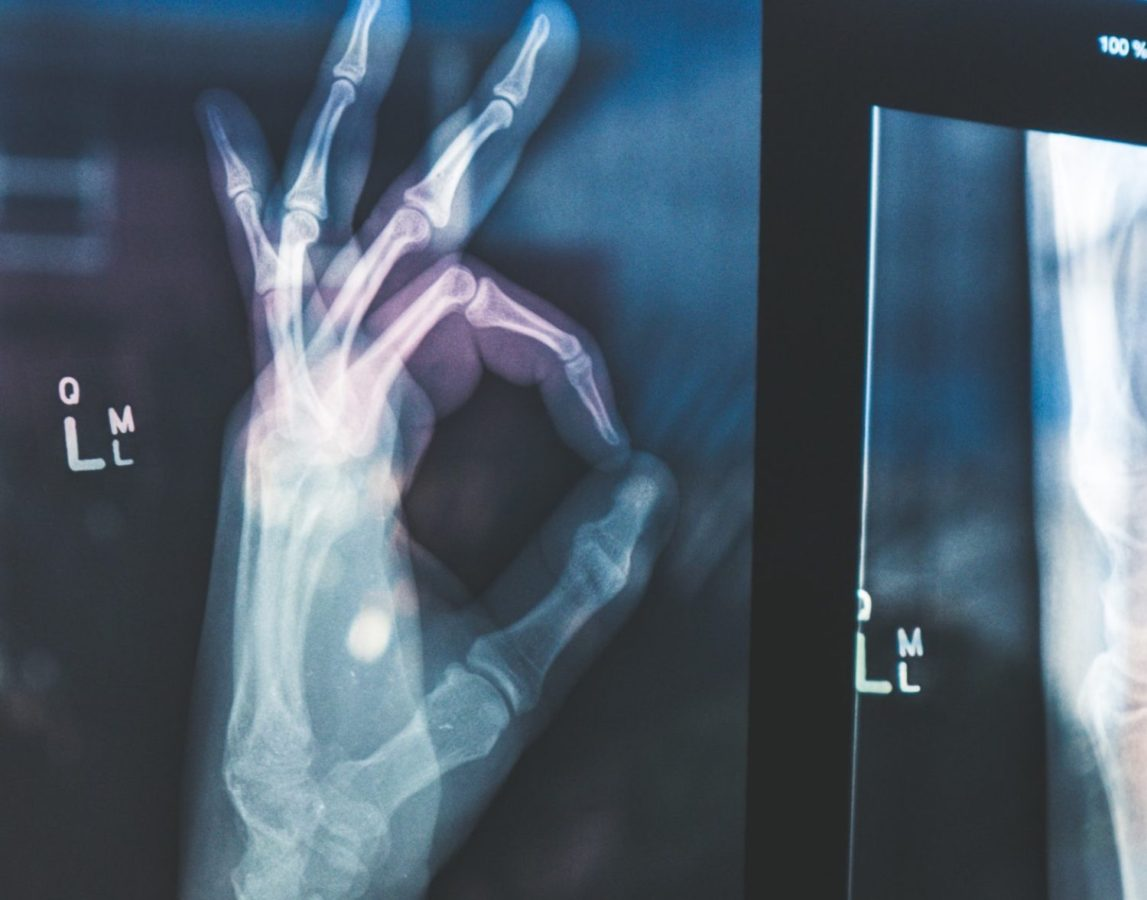 An x-ray used by personal injury lawyers in a personal injury case