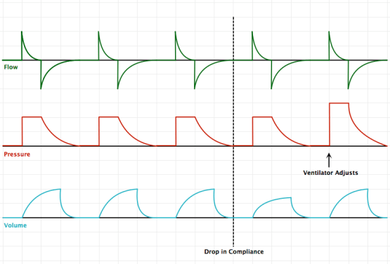Pressure-Regulated Volume Control (PRVC)