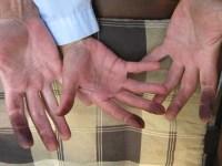 Samengewinnung - Wie Du in 3 Schritten Deine Samen schmutzige Haende