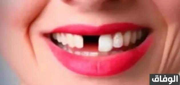 خفايا تفسير حلم سقوط الاسنان بدون دم