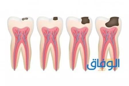 مرحلة تسوس لب الأسنان