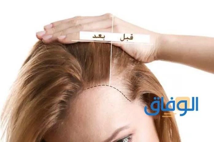 كولاجين الشعر