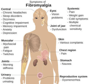What are the signs and symptoms of fibromyalgia?