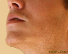 A photograph of a man's jaw