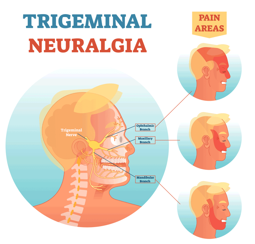 Diagram of the three different branches of the trigeminal nerve: the ophthalmic branch runs near the eye and leads to pain across the top half of the face and forehead; the maxillary branch runs across the nose and causes pain up cheeks and toward the temple; the mandibular branch starts near the ear and causes pain down the jaw.