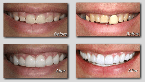 Cosmetic Dentistry Knoxville Tennessee