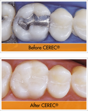 photo-cerec