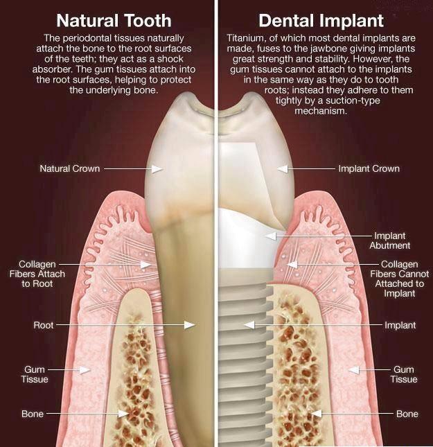 Dental Implants vs Natural Teeth