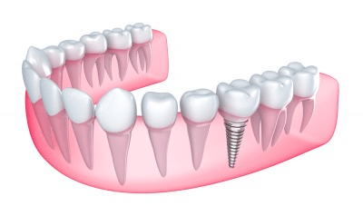 5 Reasons to Ditch Dentures for Dental Implants