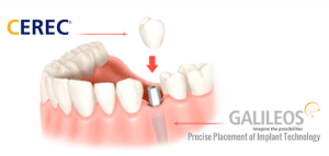 Cerec Dental Implant