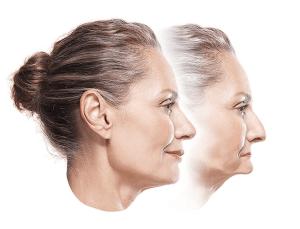 Dentures vs implants aging