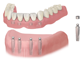 More about Implant-Supported Denture At Dean Cosmetic Dentistry