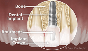Filling In The Gaps With Dental Implants Your Best Choice