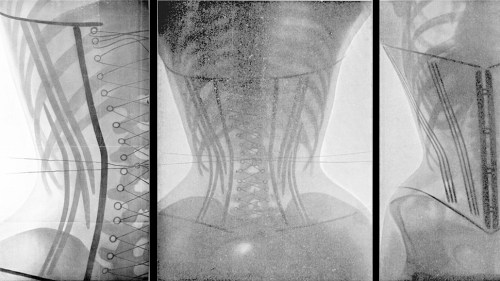 corsets x-rays