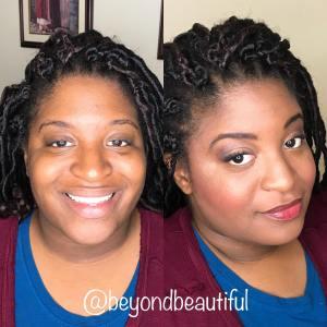 Maskcara Before and after