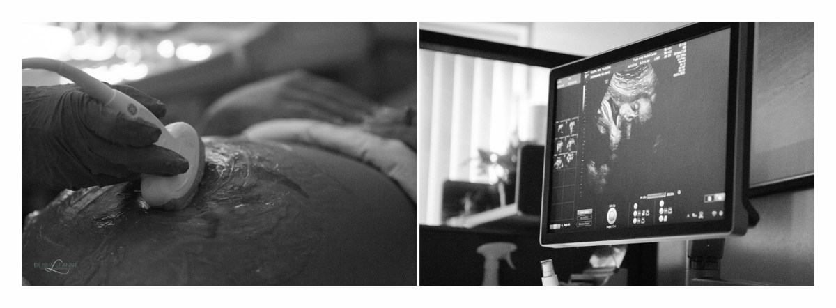 pregnant belly and ultrasound photo of baby's face