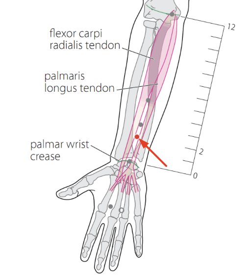 Sj 6 Acupuncture Point