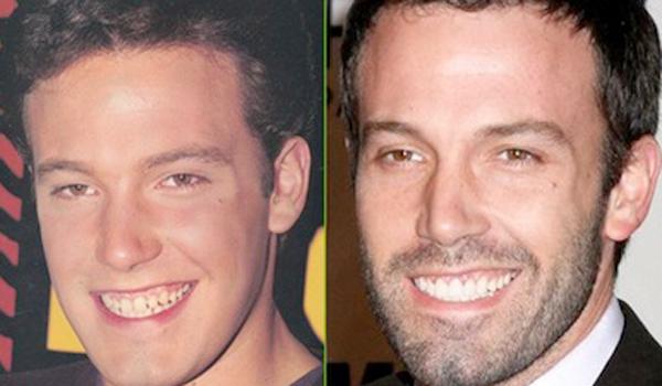 Ben-Affleck-dientes-antes-y-despues