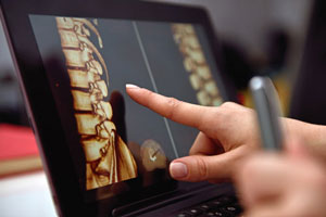 Image of spinal column on laptop.